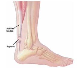 Achilles Tendon Tears2